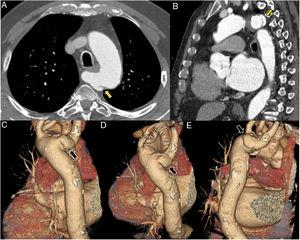Computed tomography angiography of the aorta, axial view (A), multiplanar reformatting in sagittal view (B), and volume rendering in oblique posterior views (C-E). Focal bulging of 21 mm×8 mm with a 'mushroom cap' appearance at a Kommerell diverticulum of the aberrant right subclavian artery (yellow arrows in A and B, black arrows in C-E). The latter compresses the esophagus posteriorly along its course to the right and passes 8 mm posterior to the right posterolateral margin of the trachea. The aortic size is within normal range and no other structural abnormalities of the aorta are observed. Note that vascular repair at this location may entail technical difficulties, particularly anchoring the endoprosthesis at the origin of the right subclavian artery. In addition, total exclusion of the dissected segment cannot always be achieved.