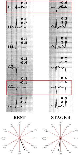 Rest versus maximum effort cardiac axis comparison. Notice the progressive change in I and aVL leads, turning a normal cardiac axis to right. This pattern is compatible with left posterior fascicular block.