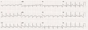 Electrocardiogram during dobutamine 30 mcg/kg/min. ST-segment elevation in inferior leads (II, III and aVF) and ST depression in I and aVL leads suggesting inferoposterior wall ischemia.