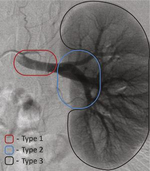 Classification of renal aneurysms by location: type-1 aneurysms affect the main renal artery; type-2 aneurysms affect the arteries of the renal hilum; type-3 aneurysms affect intraparenchymal renal segmental arteries.