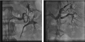 Treatment of left renal fibrodysplasia with balloon angioplasty. On the left, angioplasty balloon placement at the level of renal fibrodysplastic lesion. The white arrow indicates the angioplasty balloon. On the right, final arteriography after endovascular treatment of renal fibrodysplasia.