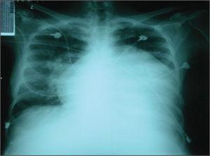 – Chest X-ray on admission.