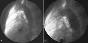 – Small (1.5mm) ductus arteriosus in which a 3-mm Amplatzer® Vascular Plug II device was successfully implanted via a retrograde route. In A, initial aortography in left view. In B, control aortography showing the device well positioned within the ductus and with no residual flow.