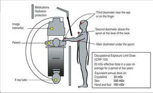 – Position of dosimeters to describe the exposure of staff during interventional procedures. The main personal dosimeter must be under the lead apron, at the level of the chest, directed towards the radiation source. The second dosimeter can be located above the apron at the level of the neck, and the third close to the eye or hand.