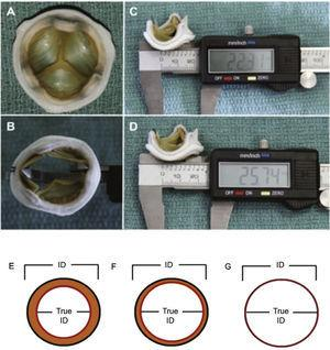 (A) Surgical bioprosthesis with porcine leaflets. (B) Measurement of the bioprosthesis internal diameter using a caliper. (C) Subtle distortion of the valve caused by the caliper, which can lead to incorrect measurements. First measurement: 22.31mm. (D) Second measurement: 25.74mm, showing the effect caused by the distortion. (E) Porcine valves: true internal diameter (ID) is at least 2mm less than the stent ID. (F) Pericardial valves with leaflets sutured inside the stent frame: true ID is at least 1mm less than the stent ID. (G) Pericardial valves with leaflets sutured outside the stent frame: true ID is the same as the stent ID. Adapted from Bapat et al.23
