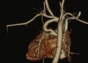 Computed tomography angiography of heart and great vessels in a case of pulmonary atresia and interventricular communication.