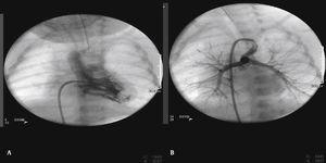 Femoral venous approach (Seldinger technique). (A) Ventriculography in a case of single ventricle and pulmonary atresia. (B) Aortogram and selective angiography of the ductus arteriosus (age: 29 days; weight 3,700 g).