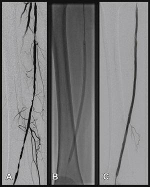 Angioplasty with stent placement of the superficial femoral artery. In A, lesion in the proximal, middle, and distal segments of the superficial femoral artery. In B, post-dilation with balloon angioplasty. In C, the final arteriographic outcome.