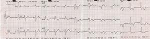 12-lead electrocardiogram at admission in the second myocardial infarction episode.