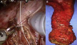 Cylindrical abdominoperineal resection. (A) Transabdominal section of the levator muscles in U shape. (B) Postoperative specimen.
