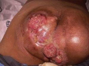 Perianal tumors with areas of mucopurulent discharge and a characteristic odor, associated with anal fistulas and vegetating, friable lesions.