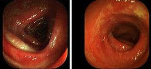 Patchy erythema and inflammation of the colonic mucosa.