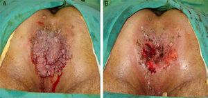 (A) Cauliflower-like giant condyloma acuminatum (GCA) in association with microsatellite lesions and with spontaneous bleeding. (B) The final appearance after electrofulguration.