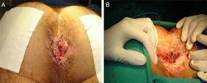 (A) Disease recurrence 4 months after the first surgery&#59; (B) postoperative appearance after a new local resection.