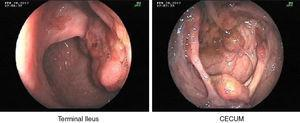 Colonoscopy: colon polyposis.
