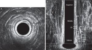 Transsphincteric fistula in a male patient after application of hydrogen peroxide. Straight path located in anterior hemicircumference. EAS – external anal sphincter&#59; IAS – internal anal sphincter. (a) Axial plane and (b) coronal plane.