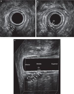 Transsphincteric fistula in a male patient after application of hydrogen peroxide. Straight path located in posterior hemicircumference. EAS – external anal sphincter; IAS – internal anal sphincter; PR–puborectal. (a) Axial plane – path, (b) axial plane – internal opening and (C) paramedian sagittal plane.