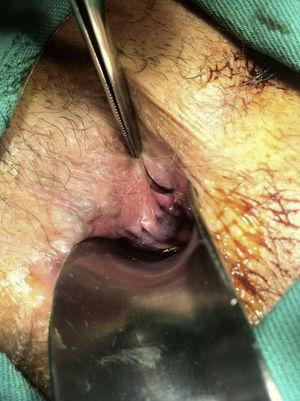 Transoperatory demonstrating posterolateral sinus containing hair in its interior.