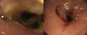Flexible Sigmoidoscopy showing a severely narrowed stricture near upper rectum.