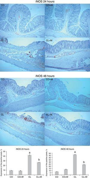 Effect of mesalazine in the expression of the enzyme inducible nitric oxide synthase (iNOS) in an experimental model of colitis. The results correspond to mean±standard error (SE). CO, control; CO+M, control+mesalazine; CL, colitis; CL+M, colitis+mesalazine. iNOS at 24 and 48h (p<0.001). a Significant difference between CL and CO/CO+M. b Significant difference between CL+M and CL.