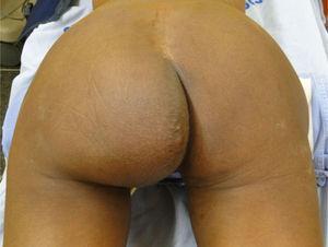 Bulging left buttock.