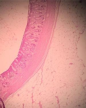 Histology of lesion compatible with submucosal lipoma.