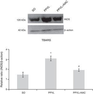 Western blot of iNOS. Effects of partial portal vein ligation (PPVL) and N-acetylcysteine (NAC) on iNOS expression. SO, Sham-operated group; PPVL, partial portal vein ligation; PPVL+NAC, partial portal vein ligation treated with NAC. *p<0.01, #p<0.01 (n=6).
