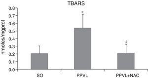 TBA-RS. Effects of partial portal vein ligation (PPVL) and N-acetylcysteine (NAC) on TBA-RS values. SO, Sham-operated group; PPVL, partial portal vein ligation; PPVL+NAC, partial portal vein ligation treated with NAC. *p<0.05, #p<0.01 (n=6).