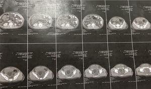 Spiral abdomino-pelvic CT-Scan.