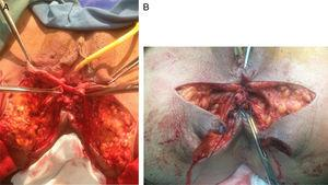 (A) Separation of ano-rectum from the vagina by dissecting the recto-vaginal septum; (B) performance of sphincteroplasty in order to overlapping the internal and external sphincter.