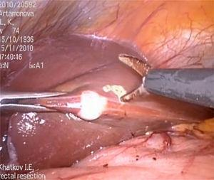 Atypical liver resection.
