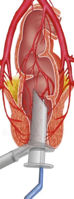 Identification of arterioles.