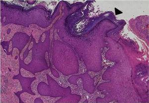"""Marked acanthosis with broad bulbous process (black arrow head). The bulbous rete processes """"push"""" deep into the lamina propria so that the base of the lesion is below the adjacent basement membrane."""