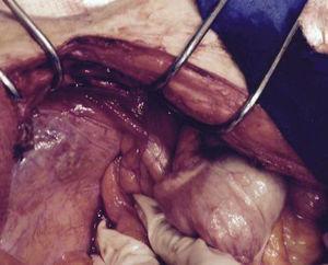 Vermiform appendix fistulizing in the granulation area.