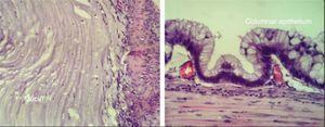 Histology of the lesion, showing mucin covered by mucus secreting columnar epithelium.