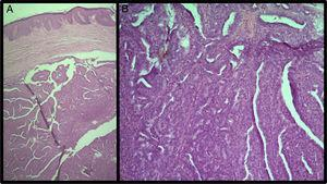 (A) HE 40× – a circumscribed dermal nodule with ramifications and cystic spaces&#59; (B) HE 100× – papillae coated by layers of tall cylindrical cells and cuboidal cells.