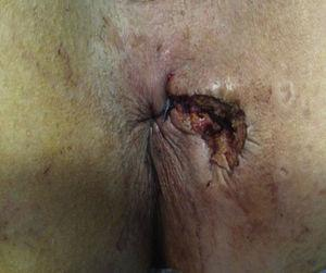 The skin and anoderm overlying the wound was left open for drainage.