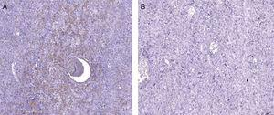 Immunohistochemical analysis showing mesenchymal neoplasm with fibrillar pattern positive for smooth muscle actin (A) and negative for desmin (B).