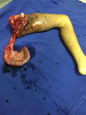 Surgical piece in monobloc.