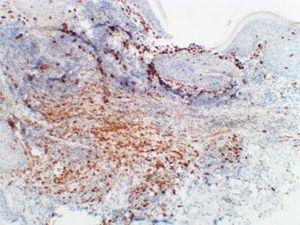 Immunohistochemistry (200×) showing membrane pattern reactivity for CD1a.