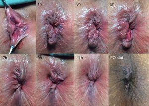 Intraoperative and postoperative result of the technique of transanal hemorrhoidal dearterialization. The hours correspond to the point that underwent ligation with mucopexy.
