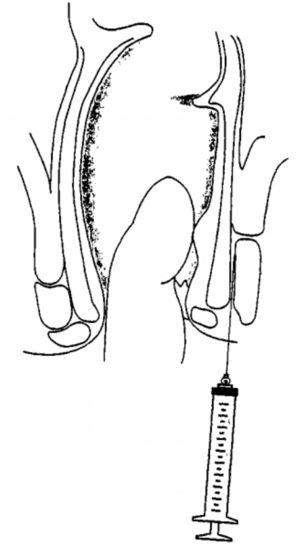 Schematic representation, in lateral section, illustrating the intersphincteric infiltration.