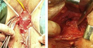 A, sublevator extrasphincteric rectal dissection by using transvaginal anterior perineal approach in a female patient&#59; B, sublevator extrasphincteric rectal dissection by using anterior transperineal approach in a male patient.