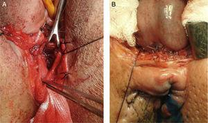 A, a full-thickness colo-anal anastomosis by using transvaginal anterior perineal approach in a female patient&#59; B, a full-thickness colo-anal anastomosis by using anterior transperineal approach in a male patient.