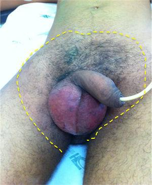 Signs of acute scrotum and red skin in the groins and low abdomen suggesting evolution to Fournier Syndrome.