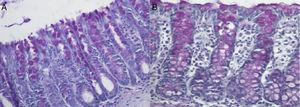 (A) Tissue expression of neutral mucins in the colonic mucosa devoid of fecal stream of an animal submitted to the saline intervention for two weeks. Note the atrophy of crypts and the reduction of the neutral mucin content in goblet cells; (B) tissue expression of neutral mucins in the colonic mucosa devoid of fecal stream in an animal submitted to intervention with curcumin at a concentration of 50mg/kg/day for two weeks. We can observe a higher content of neutral mucins in the colic glands (PAS: 200×).
