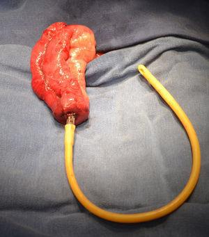 Pouch creation at stoma site, extensor and anvil.