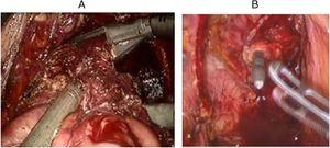 Rectal transection and intracorporeal anastomosis. A, Stapled rectal transection&#59; B, Circular stapled intracorporeal anastomosis.