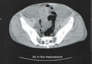 CT scan demonstrated the presence of air in the mesorectum.