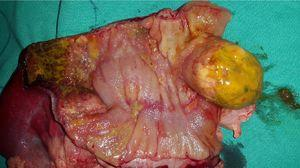 A partial colectomy and colostomy (Hartmann procedure).